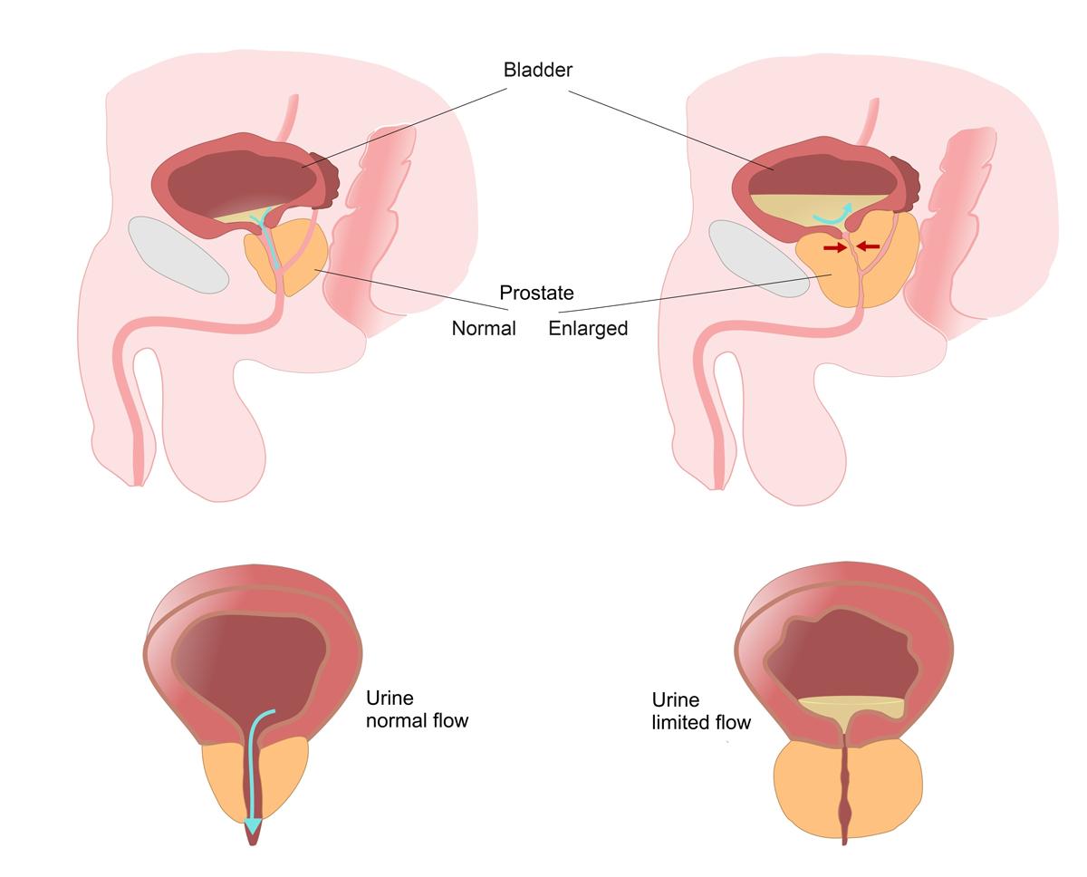 Prostate Health-9745