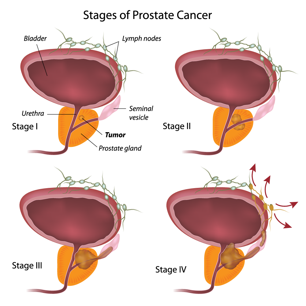 Stages of Prostate Cancer diagram