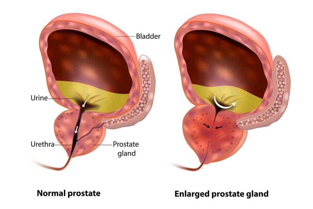 normal vs enlarged prostate