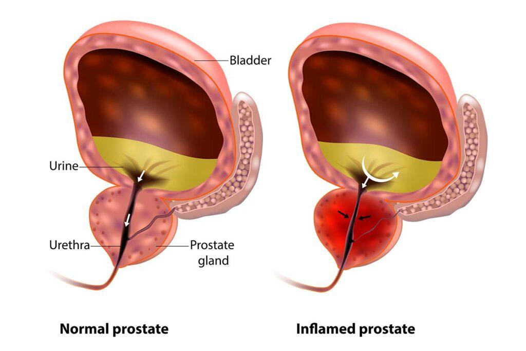 normal vs inflamed prostate