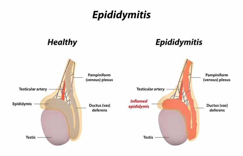 Diagram showing the difference between a healthy epididymis and epididymitis